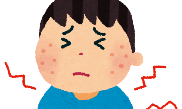アトピーは実はグルテンが原因だった?アトピー性皮膚炎とグルテンフリー